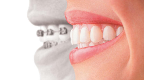 Palm City Invisalign vs. Braces